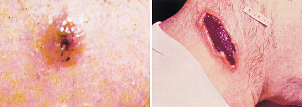 Abbildung 3: Hautmilzbrand<br>Links: Die Unterarmläsion am 7. Tag der Infektion mit Geschwür und Bläschen der ursprünglichen Milzbrandpapel Rechts: Geschwür am Hals am 15. Tag der Infektion, wie sie typisch für das letzte Stadium ist, bevor sie innerhalb der nächsten 1-2 Wochen verschwindet. Nachdruck mit Genehmigung von Binford CH, Connor DH, eds. Pathology of Tropical and Extraordinary Diseases. Vol 1. Washington, DC: Armed Forces Institute of Pathology; 1976:119. AFIP negative 71-1290-2.